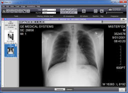 Supported Dicom CD Viewers – Sup-C